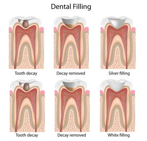 Dental Services for Children include fillings, crowns, sealants and space maintainers