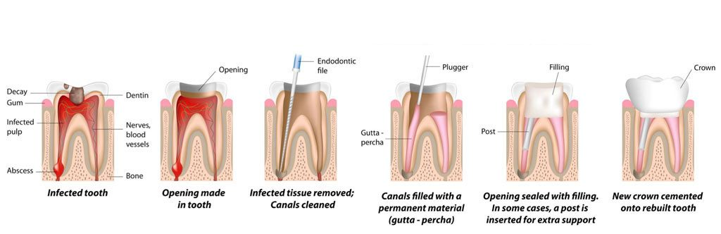 Cavities, Caries, Tooth Decay in Children treatment