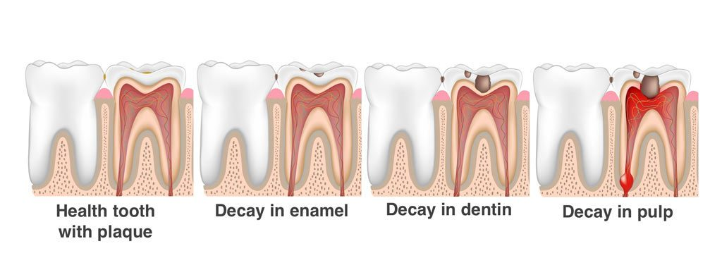 Cavities, Caries, Tooth Decay in Children Stages of Dental Decay